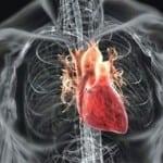 Острая ревматическая лихорадка и проблемы сердца