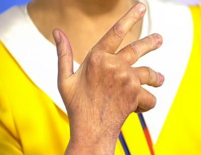 Ревматоидный артрит первые признаки симптомы и лечение