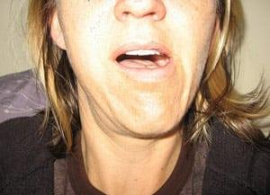 Вывих челюсти при жевании: симптомы, лечение: фото