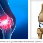 эн6доротезирование коленного сустава