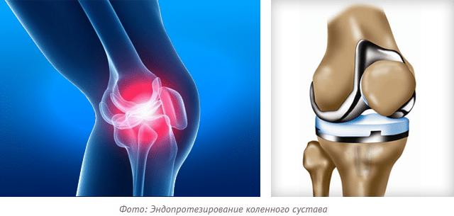 реабилитация после замены коленного сустава нога опухла как лечить