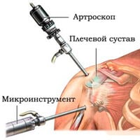 Импинджмент-синдром плечевого сустава: лечение плеча