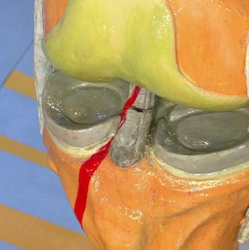 народные средства от повреждения связок коленного сустава