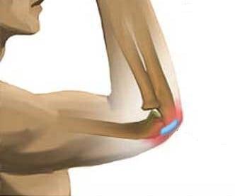 Жидкость в локтевом суставе: лечение, фото локтя