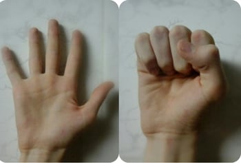 Артроз пальцев рук: симптомы, лечение и фото суставов