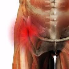 Растяжение связок тазобедренного сустава: симптомы