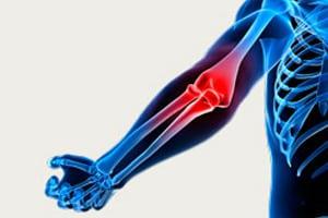 Остеоартроз локтевого сустава 1 и 2 степени лечение ДОА