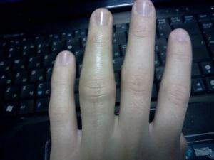 Отекают суставы на пальцах рук таблетки от артрита и артроза в суставах