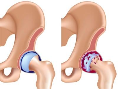 Инвалидность при коксартрозе суставов 2 и 3 степени