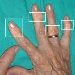 полиостеоартроз руки