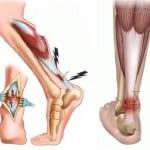 лечение растяжение связок голеностопа