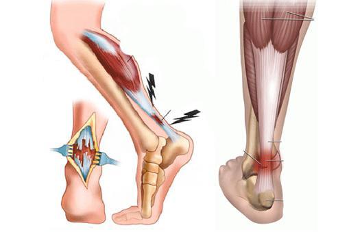 Растяжение связок голеностопа: лечение голеностопного сустава