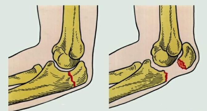 повреждение локтевого сустава лечение
