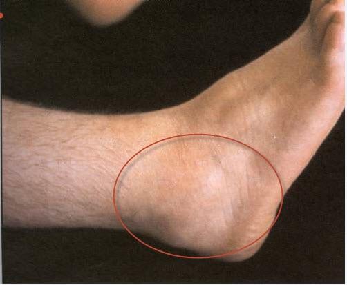 Бурсит голеностопного сустава: симптомы, лечение стопы