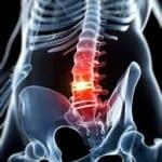 субхондральный склероз замыкательных пластинок