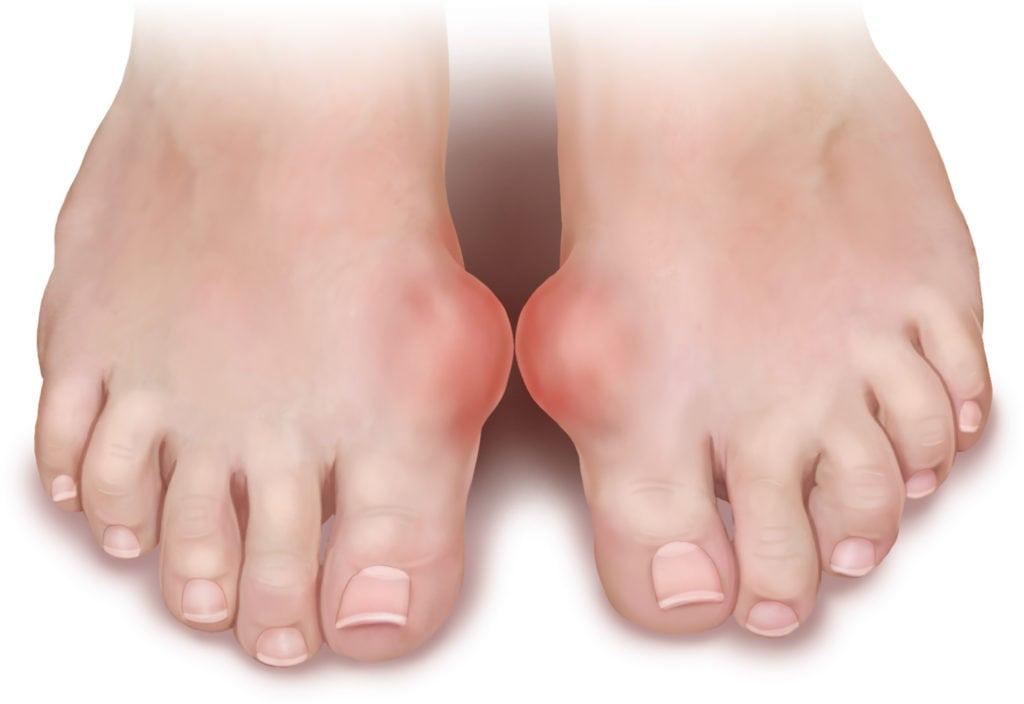 Почему появляется шишка на большом пальце ноги