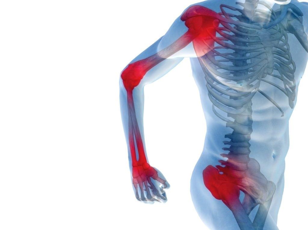 Боль в суставах - лечение боли в суставах