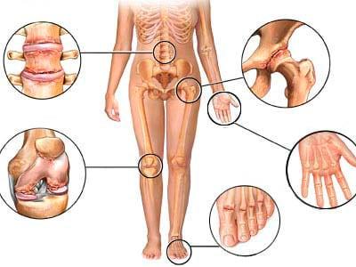 Дегенеративно дистрофические поражения суставов боль в суставах лечение плечевой сустав