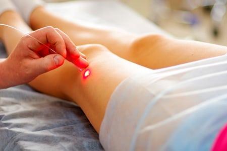 Лазер для лечения суставов Суставы