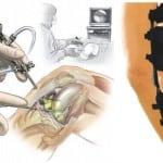 Артроскопия коленного сустава.