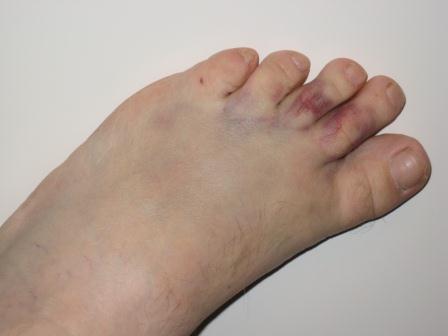 Вывих пальца на ноге: симптомы и лечение растяжения
