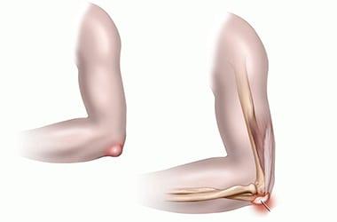 Мягкая шишка на локтевом суставе: фото опухоли на руке