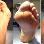 остеопороз стопы