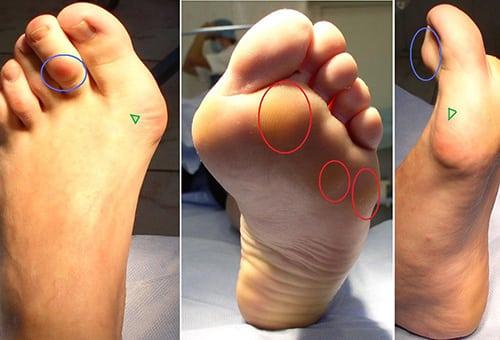 Боль в стопе под пальцами при ходьбе: болит ступня