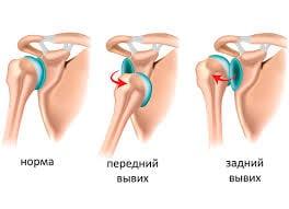 Восстанвительная терапия после вывиха плечевого сустава искусственный сустав de puy