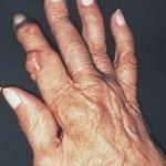 Ревматоидный артри -  разрушительная болезнь
