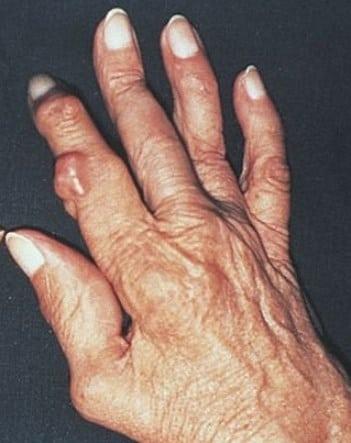 Артрит коленного сустава степени симптомы и лечение