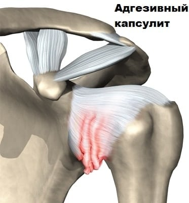 боль плечевом суставе лечение народными средствами