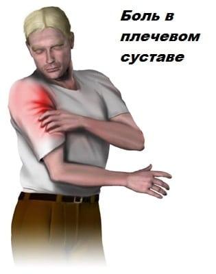 капсулит в плечевом суставе