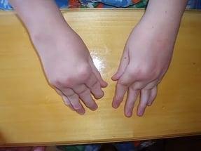 Артрит пальцев рук: причины, симптомы и лечение