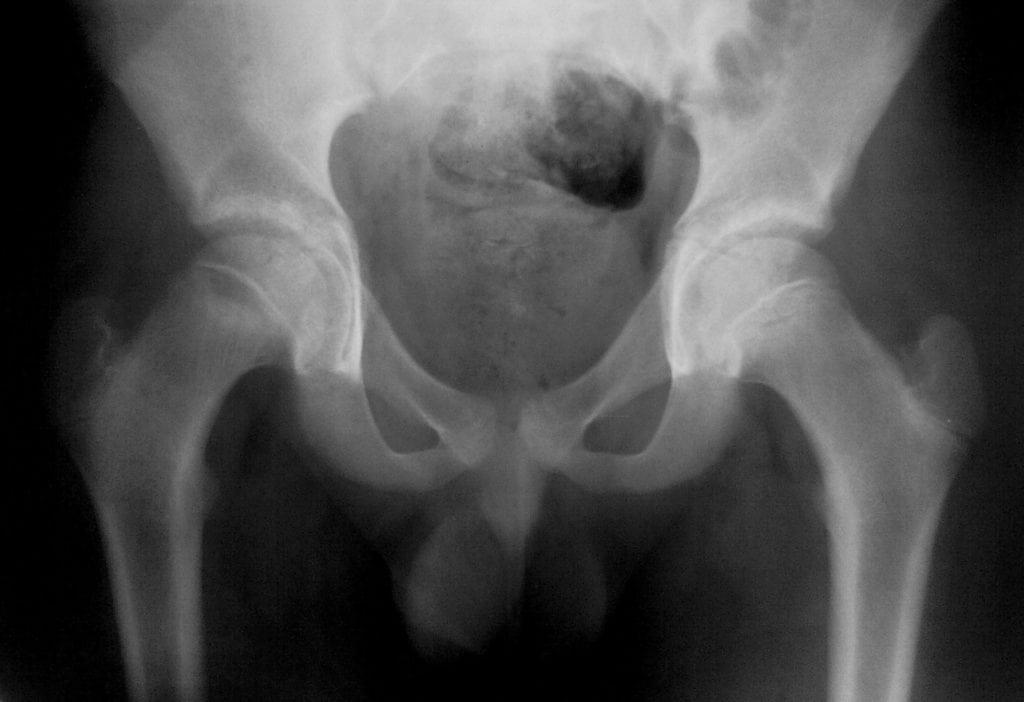 Опухоль тазобедренного сустава где делать анализы для эндопротезирования коленного сустава