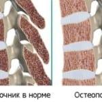 воздействие остеопороза на позвоночник
