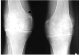 Причины болей в коленях