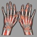 Диагностика подагры: диагноз «Болезнь королей»