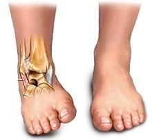 Растяжение связок коленного сустава первая помощь и лечение