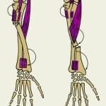 Вывих лучевой кости