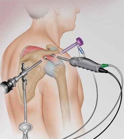 где сделать артроскопию плечевого сустава