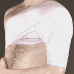 Наложение колосовидной повязки на плечо.