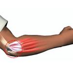 Воспаление сухожилия локтевого сустава