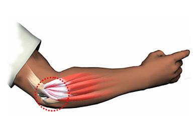 Тендинит локтевого сустава: симптомы и лечение