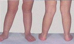 Вальгусная деформация коленных суставов у ребенка 3 лет фото