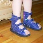 спец обувь против вальгусной деформации