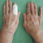 артрит кистей