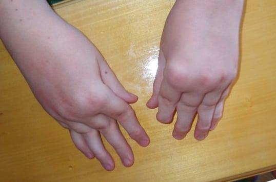 лечение хронического артрита у детей