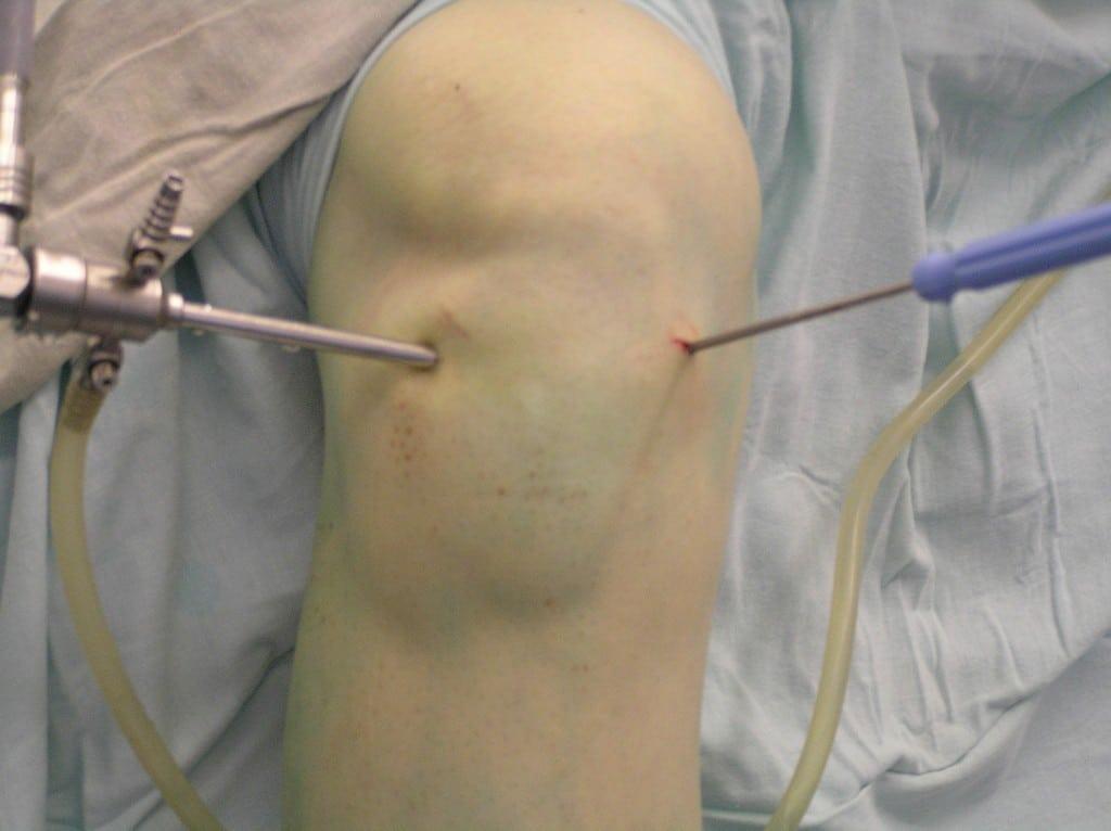 Артроскопия коленного сустава: отзывы о восстановлении колена