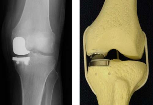 эндопротез коленный сустав genesis
